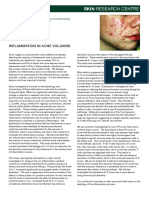 Inflammation in Acne Vulgaris
