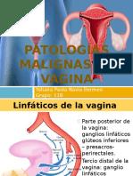 Patologias Malignas de La Vagina