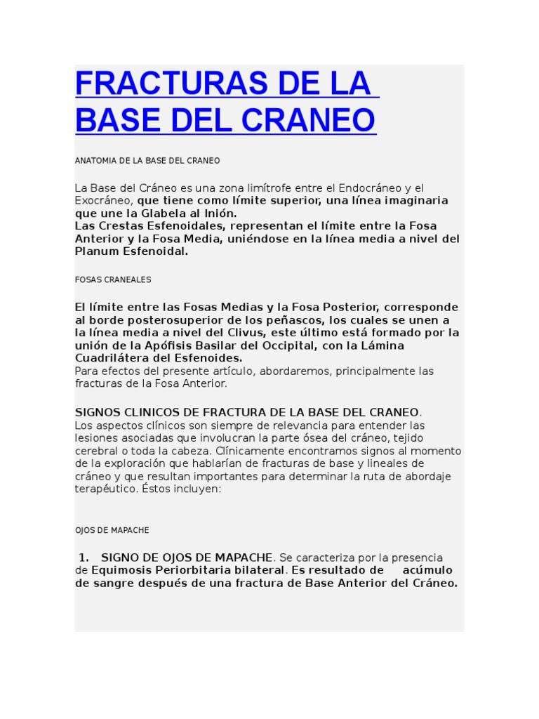 Fracturas de La Base Del Craneo