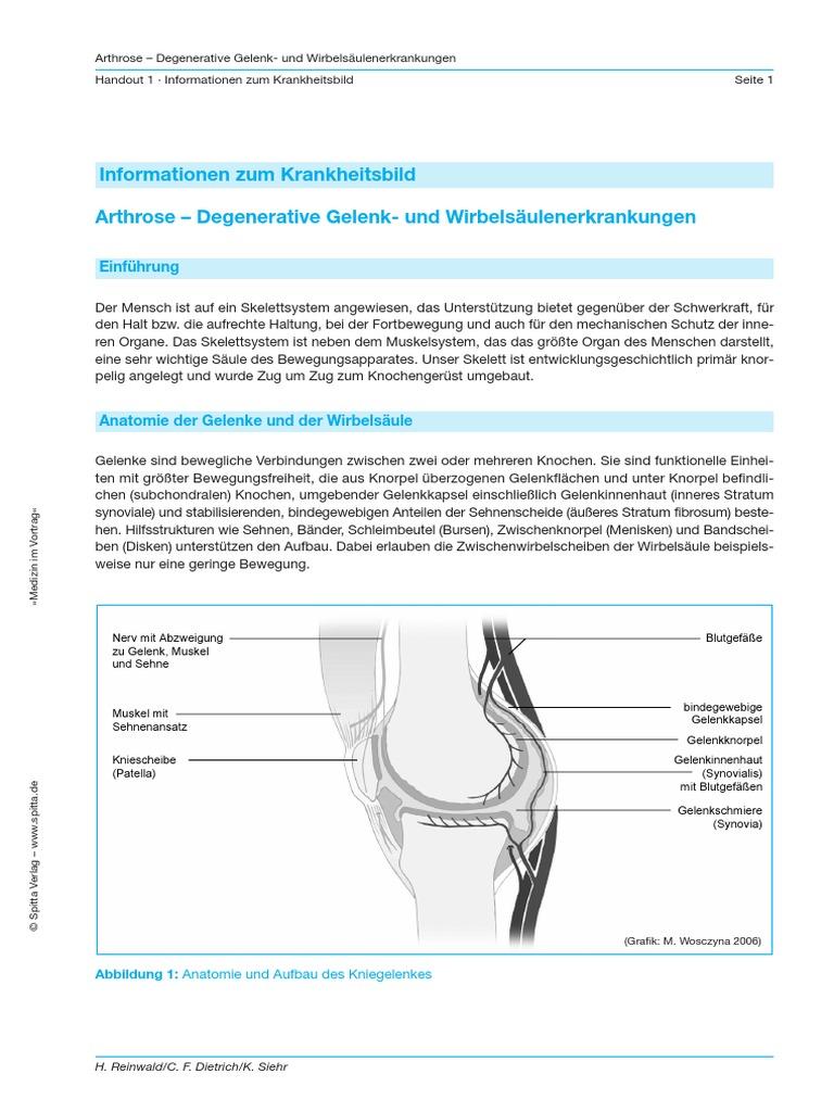 Arthrose Handout - Information
