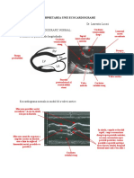 Interpretarea Unei Ecocardiograme
