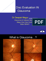 22-Optic-Disc-Evaluation-IN-Glaucoma.ppt