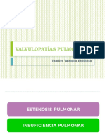 VALVULOPATIAS PULMONARES
