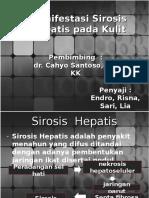 Manifestasi Sirosis Hepatis Pada Kulit