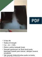 Foto Radiologi