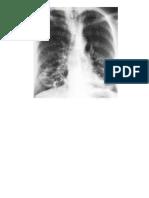radiologi bronkiektasis