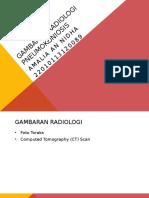 Gambaran Radiologi Pneumokoniosis