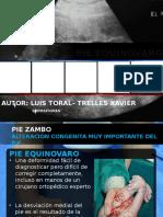 Alteracion Del Sistema Esqueletico - Pie Equinovaro