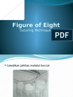 Figure of Eight suturing