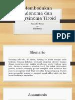 karsinoma tiroid