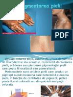 Depigmentarea pielii2