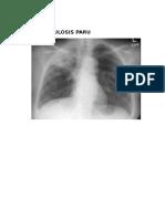 Gambar Radiologi Penyakit Respirasi