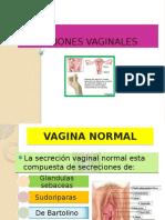 infeccionesdeltractogenital-131115154557-phpapp02