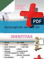 Konjungtivitis Vernal Dian