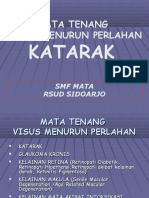 Katarak RSUD SDA materi