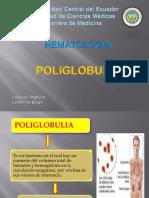 poliglobuliaaa