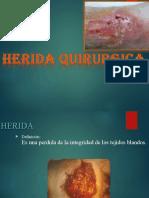 Heridas quirúrgicas
