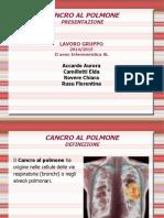 Cancro Al Polmone e Laringectomia