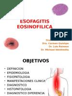 Esofagitis Eosinofilica Final