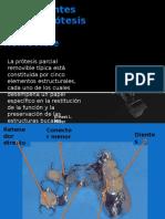 Componentes de Una Protesis Parcial Removible
