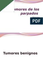 Tumores de Los Parpados