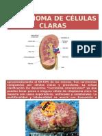 Carcinoma de Células Claras