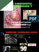 Ekg Cardiopatia Isquemica