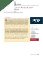 Debilidad, Ptosis y Diplopía