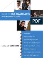 Ultimate Hair Transplant Guide