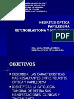 Tema 11 Neuritis Optica y a
