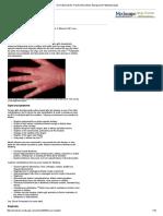 Dermatomyositis_ Practice Essentials, Background, Pathophysiology