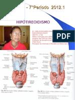 Hipotireoidismo Aula