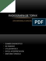 Graficos de Radiografia de Torax