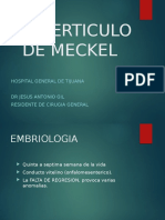 Diverticulo de Meckel