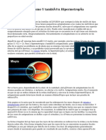 Miopía, Astigmatismo Y también Hipermetropía