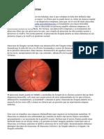 El Glaucoma En Perros
