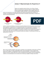 La Miopía, Astigmatismo Y Hipermetropia En Pequeños Y Bebés