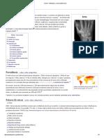 Artrite – Wikipédia, A Enciclopédia Livre