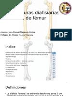 Fracturas Diafisiarias de Fémur