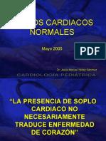 Descripcion medica cientifica de un soplo cardiaco