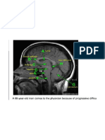 Neuro Images Step1