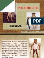 Polio Miel It Is