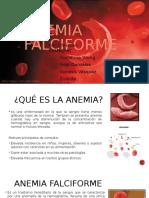 anemia falciforme .pptx