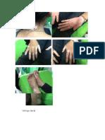 contoh kasus - kasus kulit