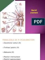 Nervi Cranieni Migrena