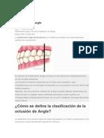 Clasificación Angle.docx