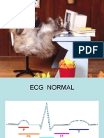 EKG Curso I