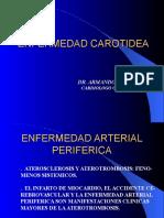 ENFERMEDAD CAROTIDEA