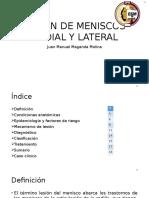 Lesión de Meniscos Medial y Lateral