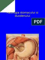 Ulcerulgastric Duodenal